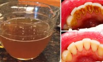 study-natural-tea-removes-plaque-better-commercial-mouthwash
